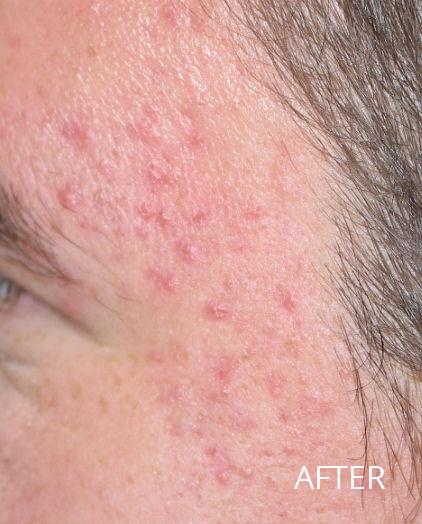 acne-a